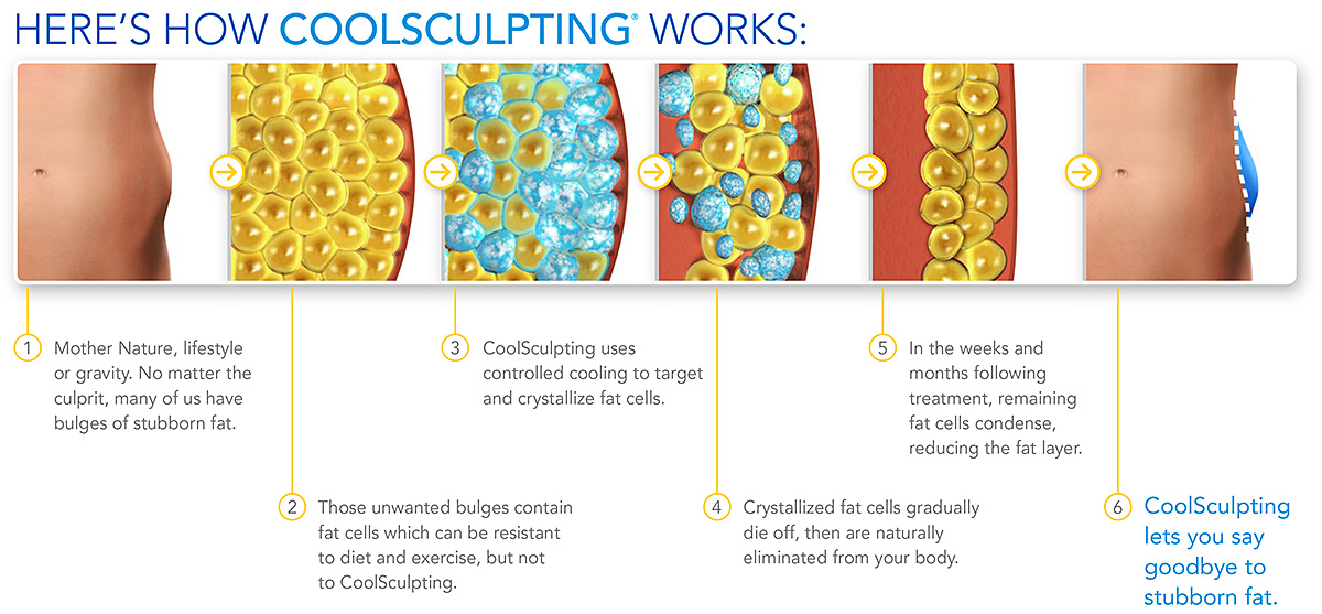 How CoolSculpting Works | Freeze Fat Chino Hills